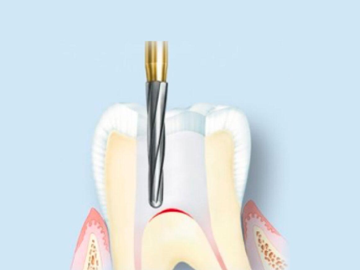 Perché i denti devitalizzati si rompono spesso e come evitarlo