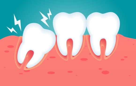 Denti storti: cause, caratteristiche, rischi e rimedi