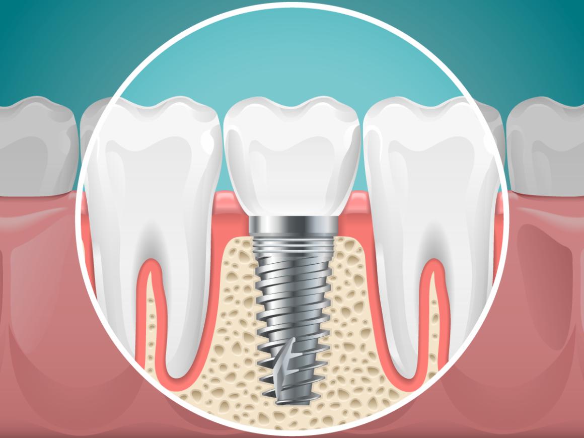 Quello che non sai sugli impianti dentali