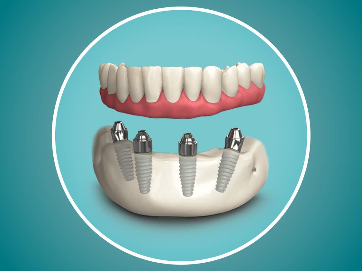 Come riavere i denti fissi se ho poco osso per gli impianti