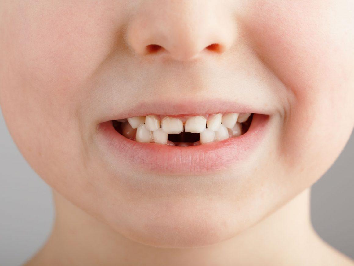 La prima visita dal dentista: i consigli per il bambino